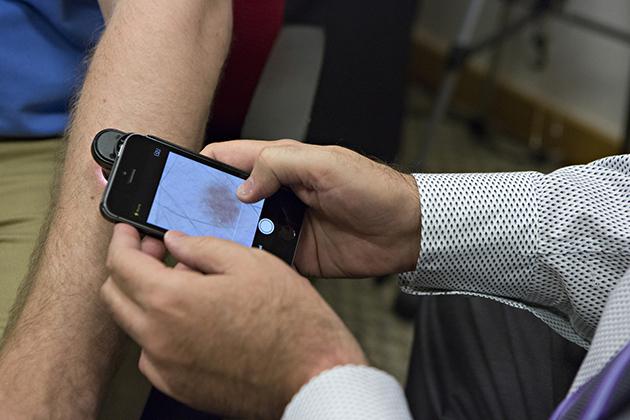 app que detecta cancer de piel